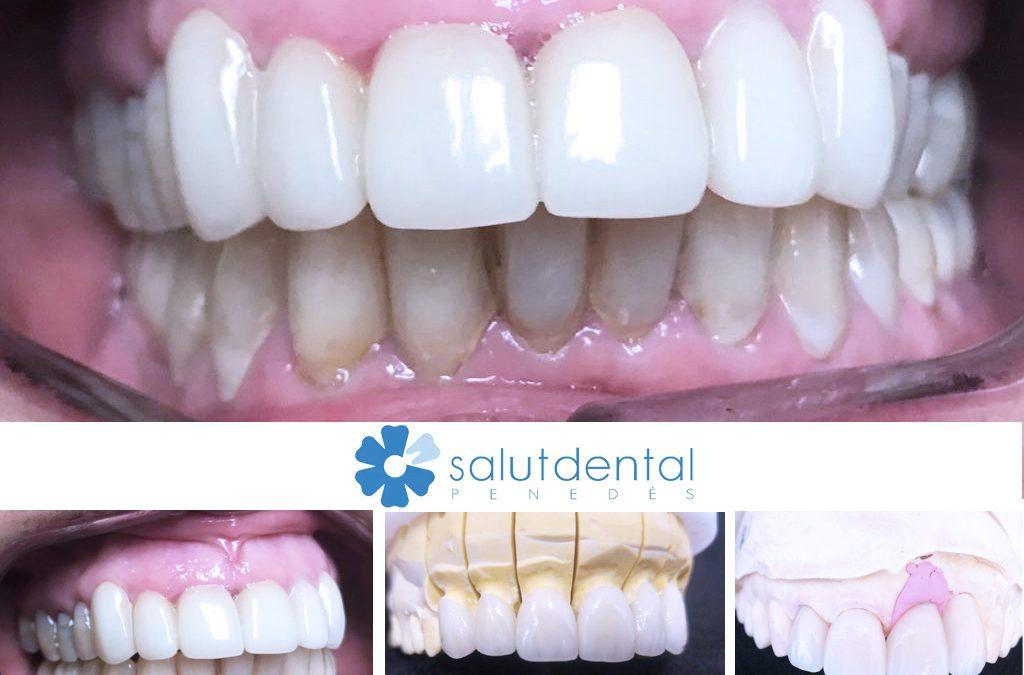Carilles dentals: tipologies i aplicació