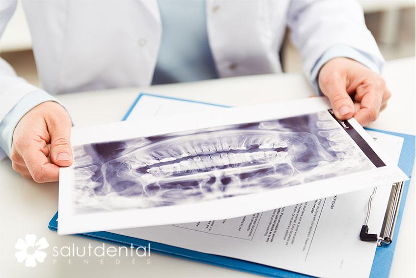 Especialistes en implantologia