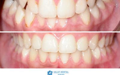 Maloclusió mandibular i mossegada creuada: origen i tractament