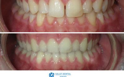 Correcció del diastema (dents separades) amb ortodoncia